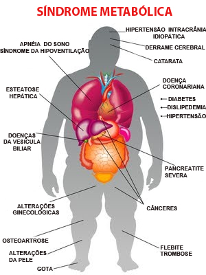 sindrome-metabolica-4