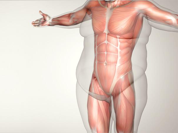 Cirurgia-Bariátrica